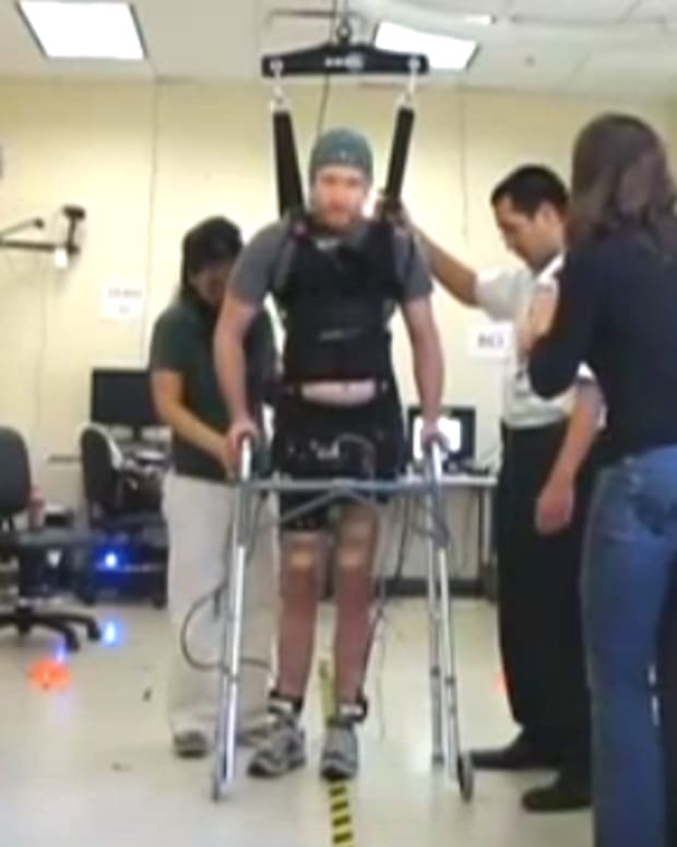 Four Paralyzed Men Able to Move Legs, Feet with Electrode