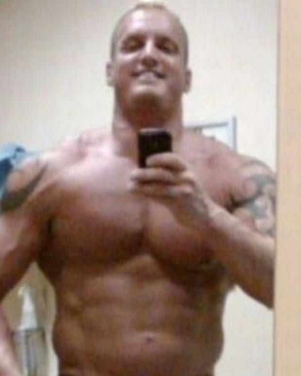 I Lost Control': Bodybuilder Almost Loses Arms Due To Synthol