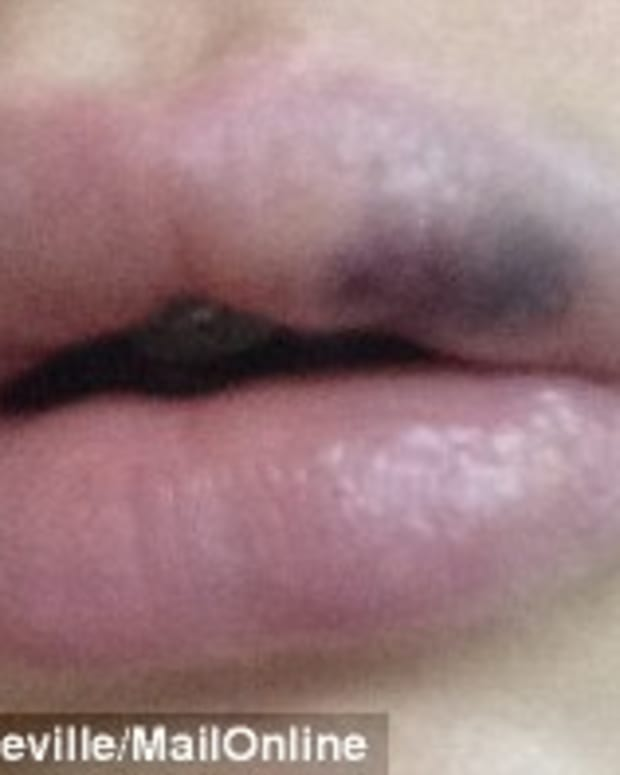 Amelia Greville's lips after the silicon injections