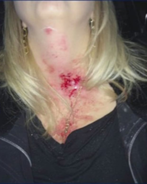 Tina Morales's neck