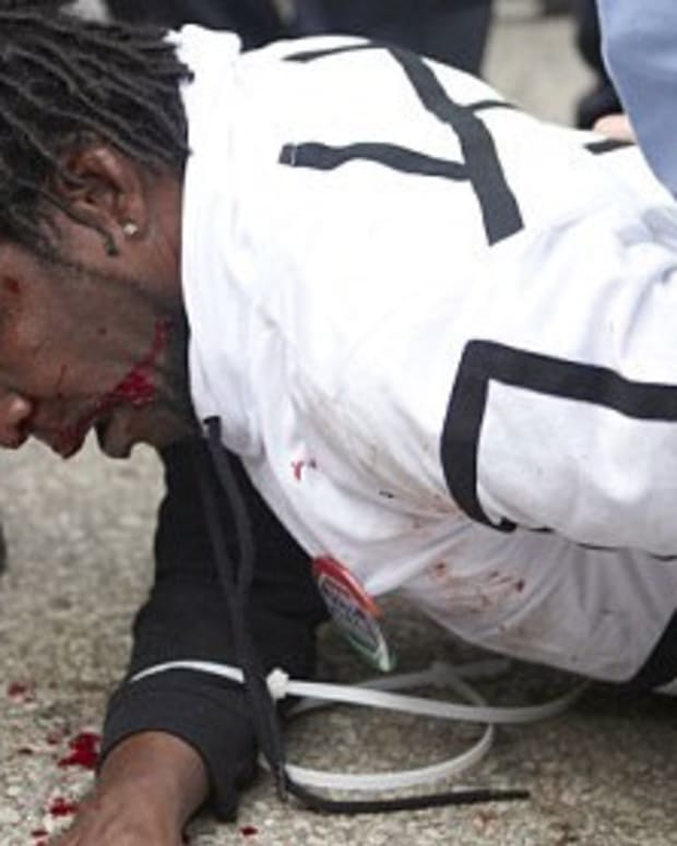 Bloodied Protester Filmed Being Escorted From St. Louis Donald Trump Rally (Video) Promo Image