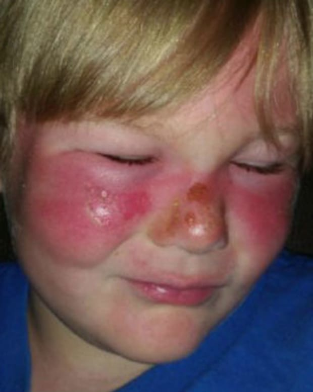 Mom: Boy Got Burns While Wearing Sunscreen (Photos) Promo Image