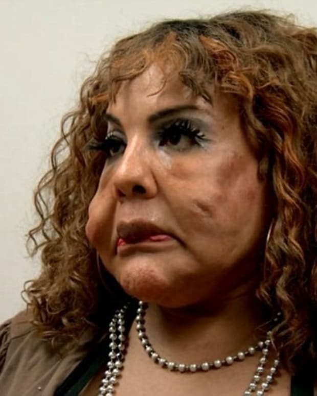 Transgender Woman Hopes To Remove Cement From Face Promo Image