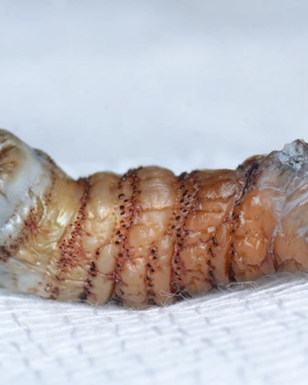 Maggots Burst Out Of Woman's Skin After Bite (Photos) Promo Image