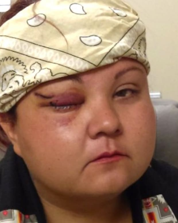 DAPL Protester Suffers Eye Injury, May Lose Vision (Video) Promo Image