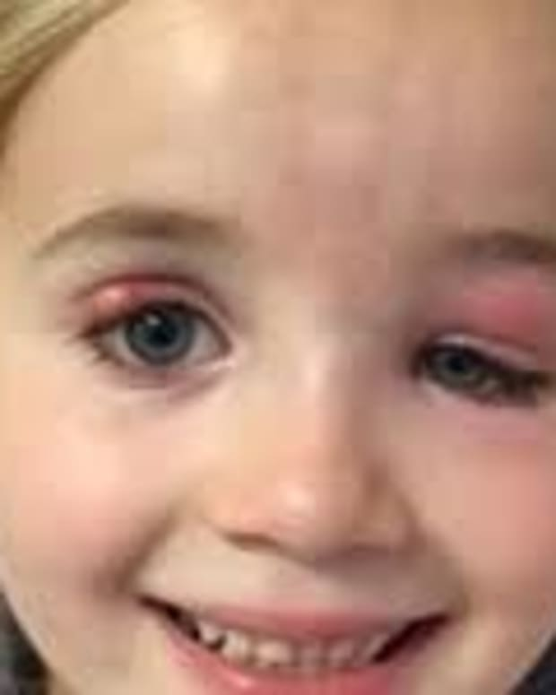 Doctors Don't Realize What's Wrong With 5-Year-Old Girl's Eyes Until It's Too Late Promo Image