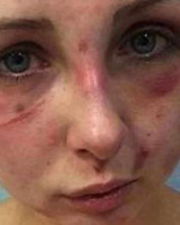 Authorities Outraged At Man's Excuse For Why He Beat His GF Senseless Promo Image