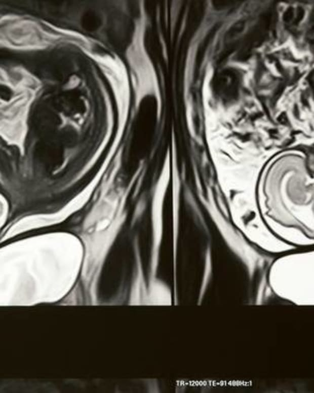 Strange Image Appears On Pregnant Woman's MRI Promo Image