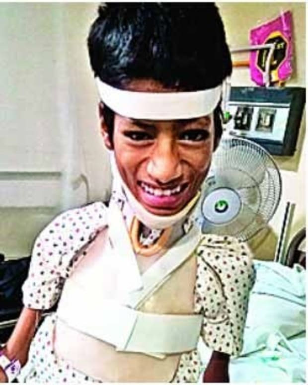 Boy Born With Crooked Neck Gets Life-Changing Surgery (Photos) Promo Image