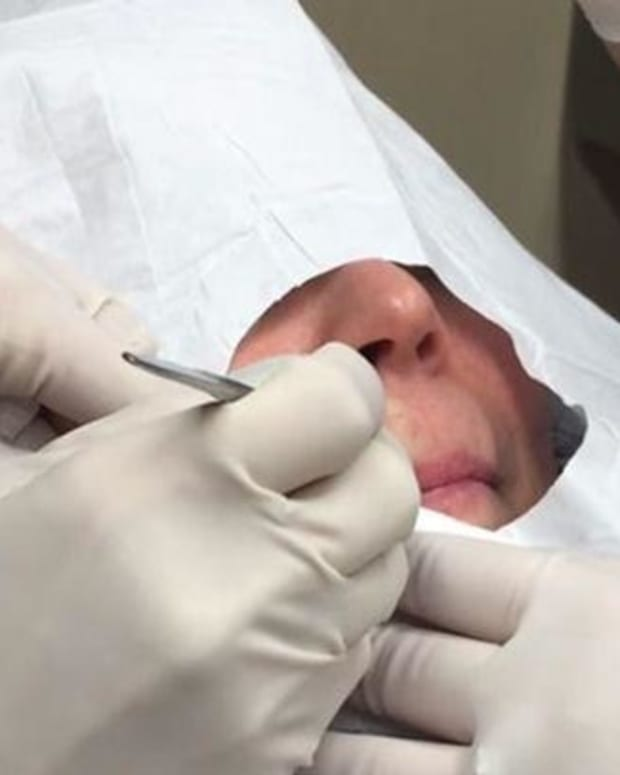 Woman Gets Bump Above Lip Squeezed, What Comes Out Leaves Dermatologist Shocked (Video) Promo Image