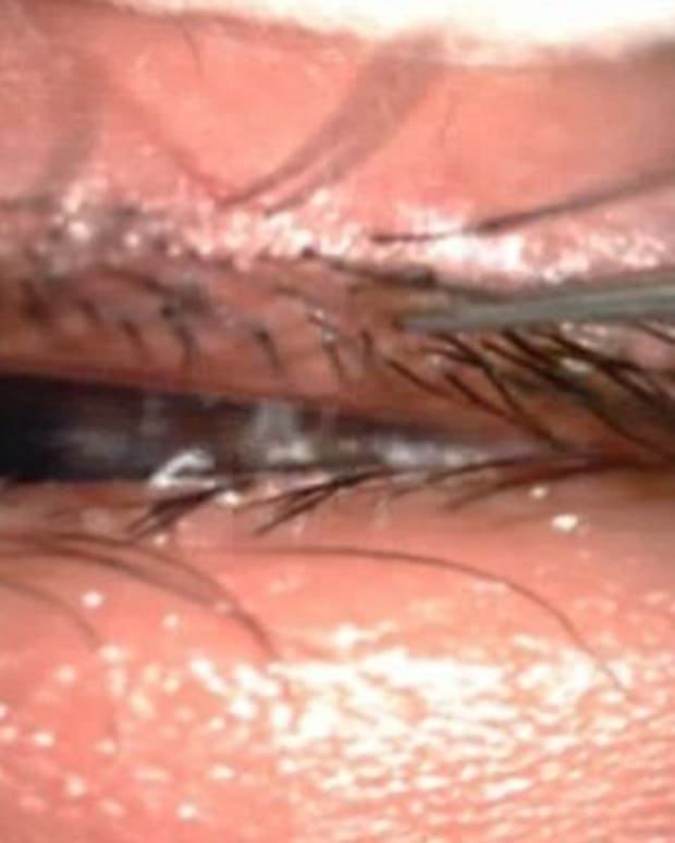 Video Shows Girl Having Lice Removed From Eyes (Video) Promo Image