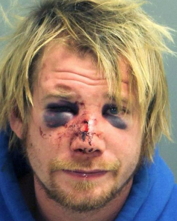 Man Breaks Into Apartment, Hit In Face With Firewood Promo Image