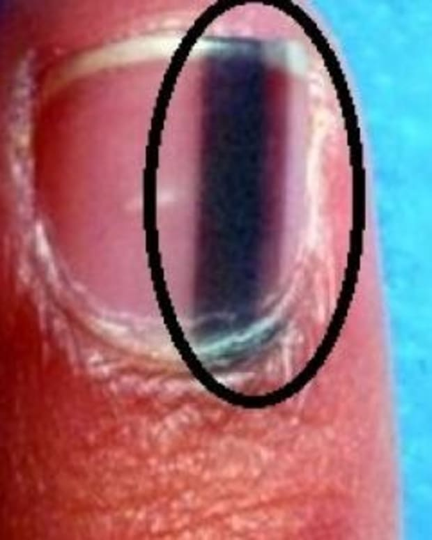 Heres What It Means When Someone Has A Black Line Like This On Their Nail Photo