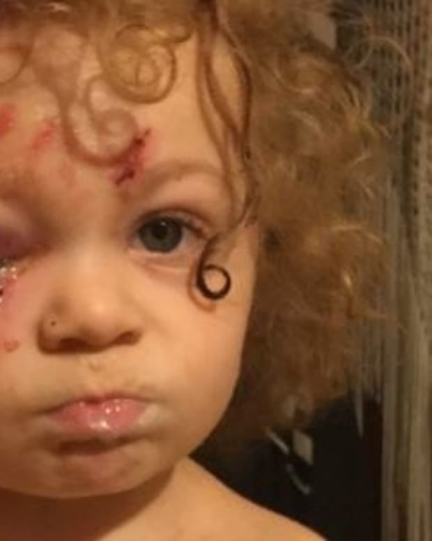 Toddler's Face Mauled By 'Super Mean' Pit Bull Promo Image