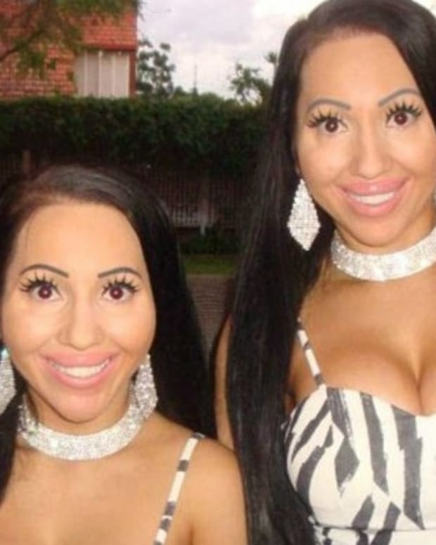 Sisters Regret Having Plastic Surgery To Look Identical Promo Image
