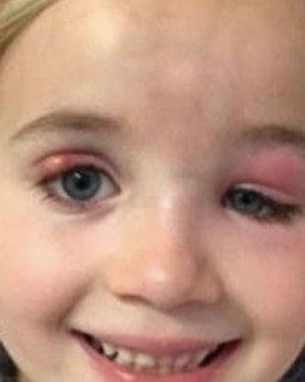 Doctors Fail To Realize What's Wrong With 5-Year-Old Girl's Eyes Until It's Too Late Promo Image