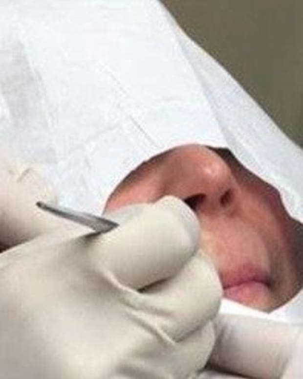 Woman Gets Bump Above Lip Drained, What Comes Out Leaves Dermatologist Disturbed (Video) Promo Image