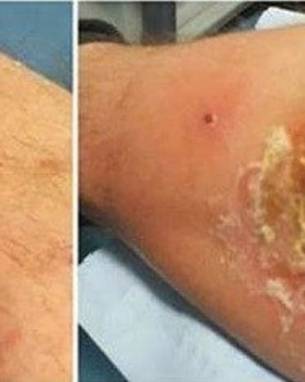 Soldier Left With Massive Hole In His Leg, Can't Walk After Being 'Bitten' In Bed Promo Image