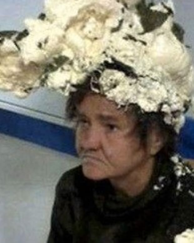 Woman Rushes To ER With 'Helmet' Stuck On Head, Doctors Quickly Realize What Happened (Photo) Promo Image