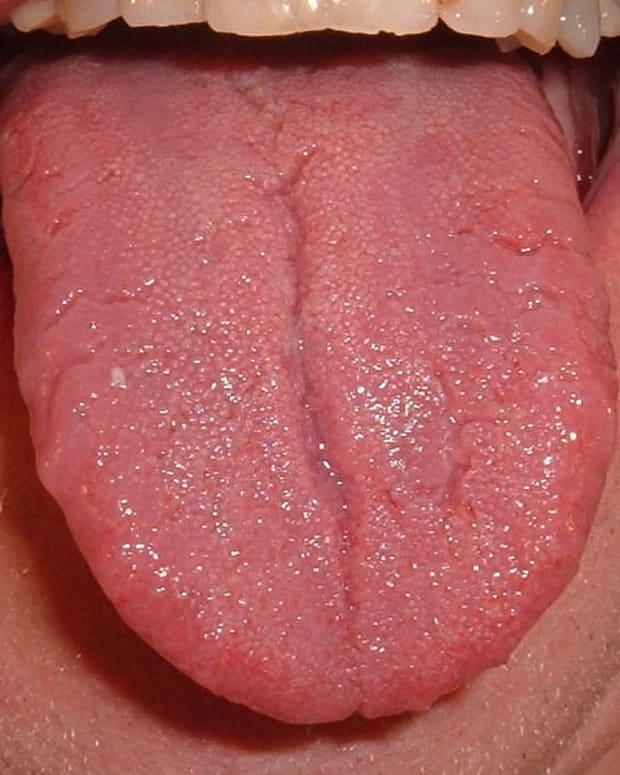 Tongue.