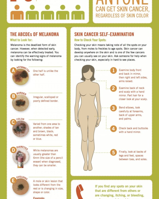 how-are-nudist-with-skin-cancer