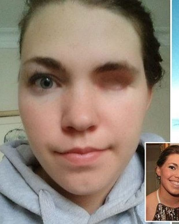 Woman Loses Eye To Rare Form Of Ocular Melanoma Promo Image