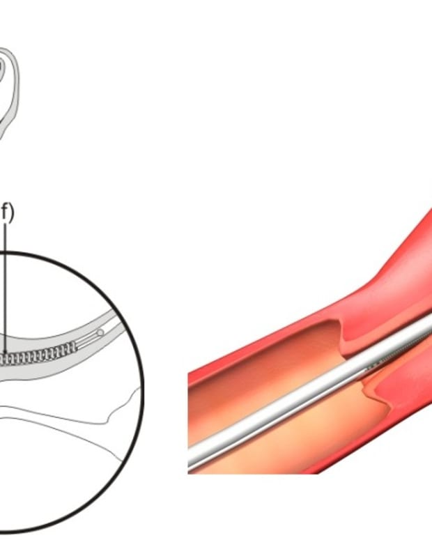 Diagram of Essure device being inserted