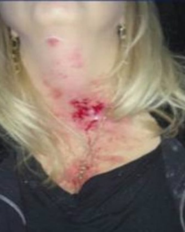 Woman Warns Other Drivers After Ride Home Takes A Scary, Dangerous Turn Promo Image