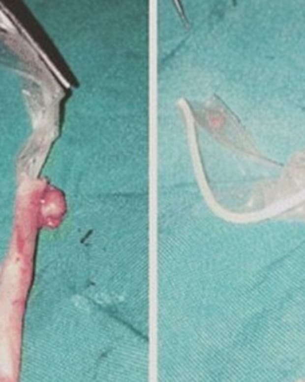 Doctors Find Condom Inside Woman's Appendix (Photo) Promo Image