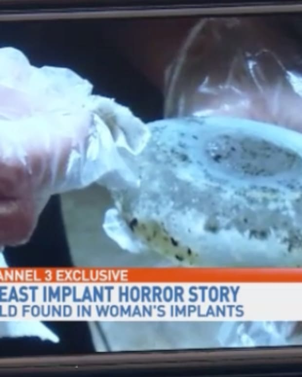 moldy breast implants