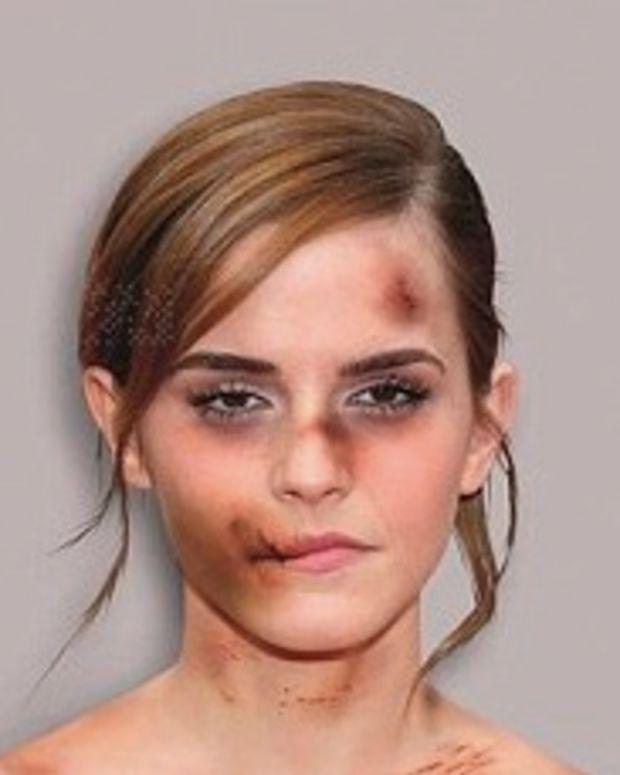 Edited Photo of Emma Watson Shown As Battered Victim