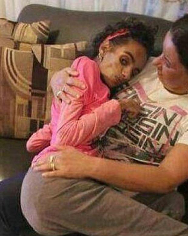 Simple Procedure Turns Teen Girl's Life Upside Down (Photos) Promo Image