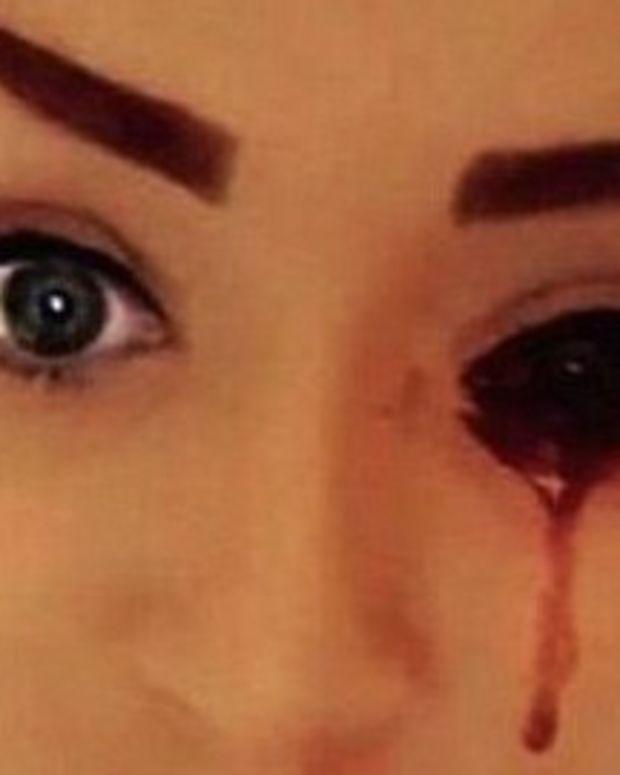 Teenager Bleeding From Eyes Baffles Doctors (Photos) Promo Image