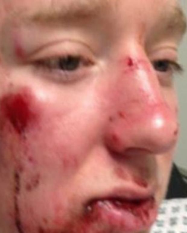 Teen Boy Hit By Car Left Shocked After Woman Tells Him Her Reason For Not Helping Him Promo Image