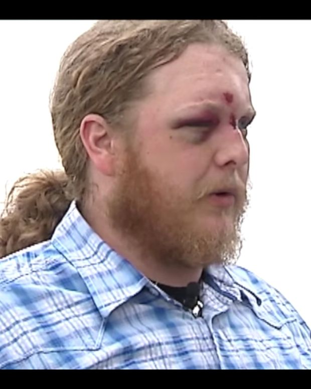 Veteran Attacked By Three Teens, Left Blind (Video) Promo Image