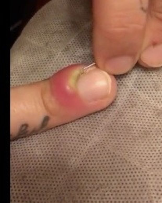 Man Pops Swollen Finger With Horrifying Results (Video) Promo Image