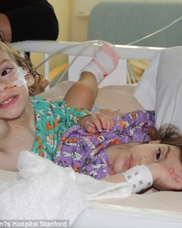 Conjoined Twins Survive Separation Surgery Promo Image