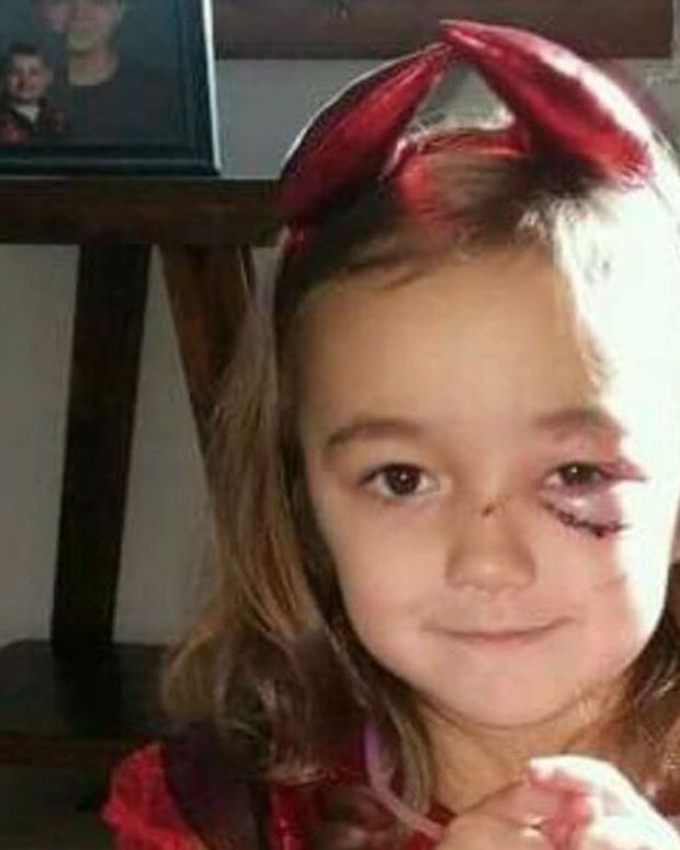 Dog Attacks Child On Halloween, Neighbors Save The Day (Photos) Promo Image