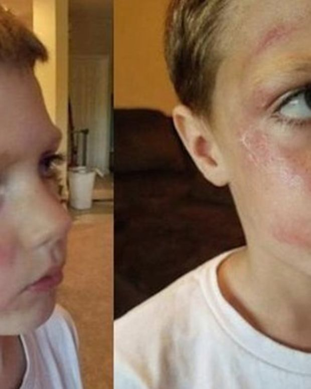 Mom Picks Up 5-Year-Old Son From Daycare, Finds Bruises All Over His Face, Gets Shock Of Her Life Promo Image