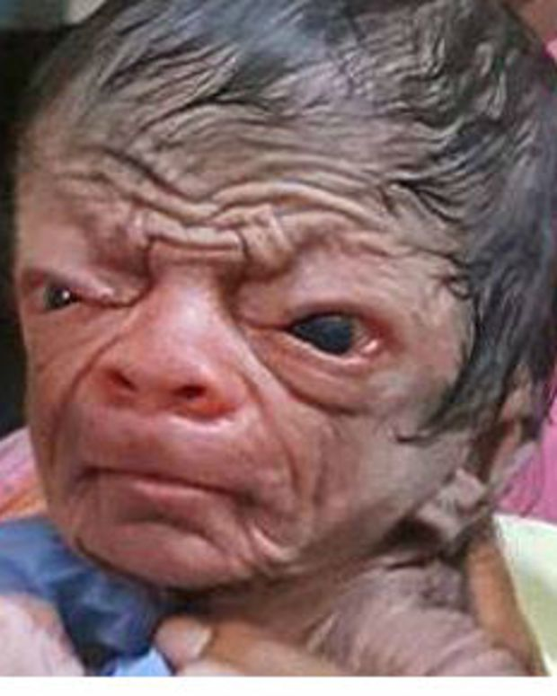 Unusually Hairy Newborn Baby Looks 80 (Video) Promo Image