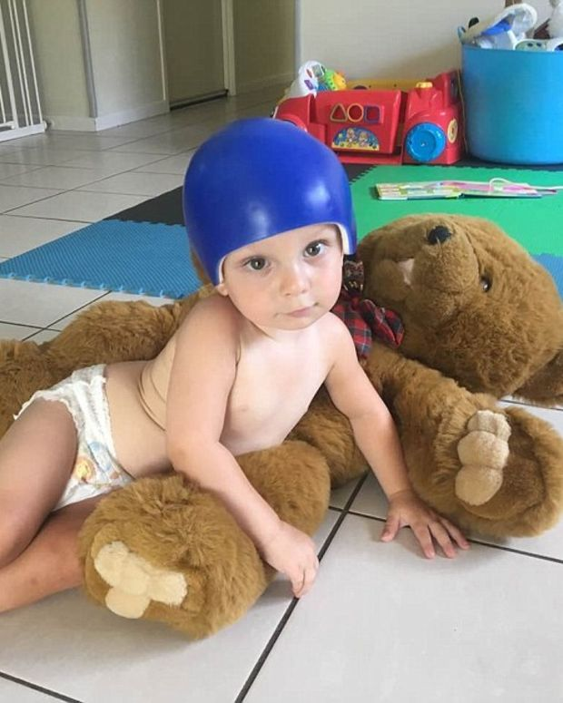 Baby Has Part Of Skull Removed After Falling Off Couch (Photos) Promo Image