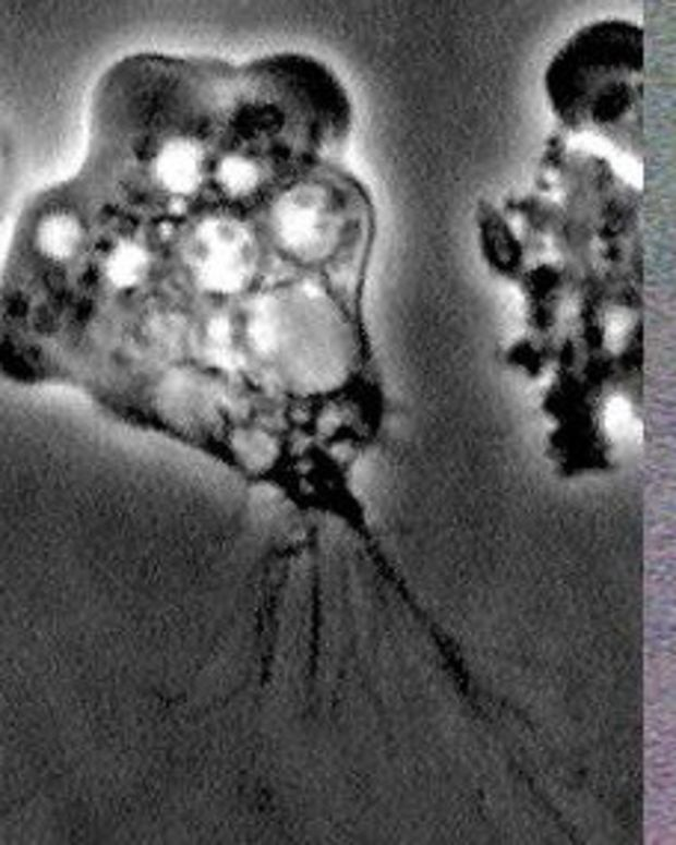 Man Contracts Fatal Brain-Eating Amoeba After A Swim Promo Image