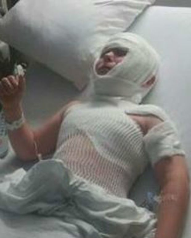Boy Hospitalized After Using Treadmill (Photos) Promo Image