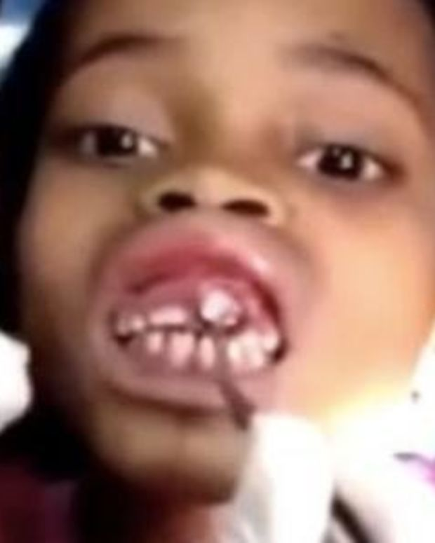 10-Year-Old Goes To Doctor With 'Tingling' In Mouth, Gets Bad News (Video) Promo Image
