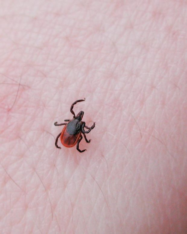 Officials Warn Of Deadly, Tick-Borne Virus Promo Image