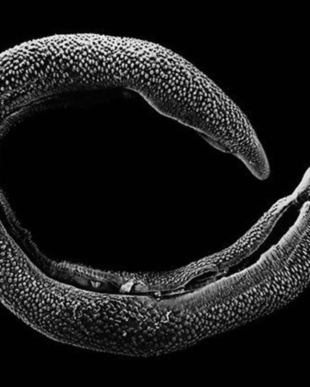 Woman Discovers Rash Is Actually Parasitic Worm (Photo) Promo Image
