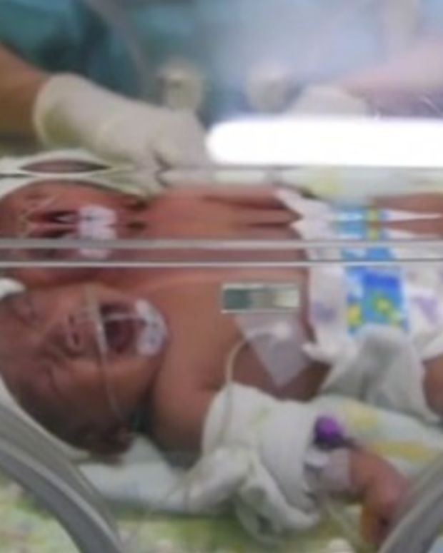 Indonesian Baby Born With Two Heads (Photos) Promo Image