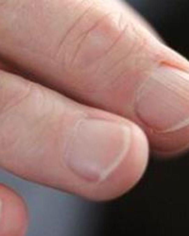 Man's Fingers.
