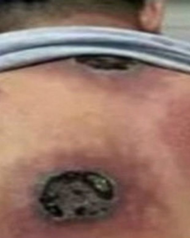 Man's Cupping Procedure Goes Terribly Wrong (Photos) Promo Image