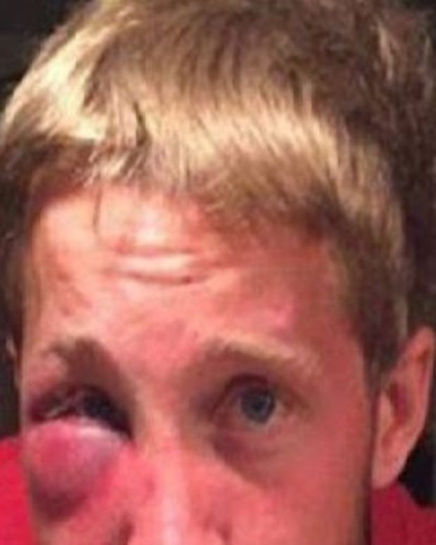 Bullied Teenager With Asperger's Syndrome Gets Assaulted, Has An Unusual Request For His Attackers Promo Image